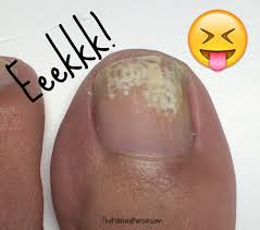 how to remove white marks on toe nails