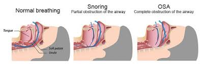 Image result for mixed sleep apnea image
