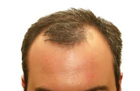 there s help for hair loss peoria az