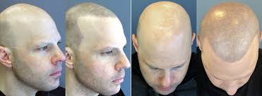 what is scalp micropigmentation smp