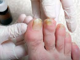 why are my toenails yellow causes and