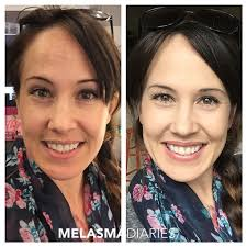 best camouflage makeup for pigmentation