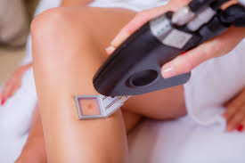 laser hair removal for diffe skin