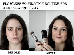 acne red skin using mufe hd