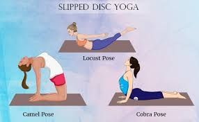 slipped disc facts symptoms