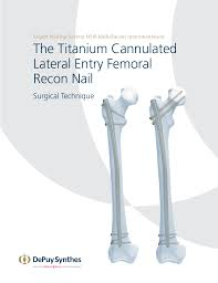 fem nail surgical technique