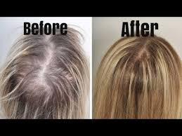 2 best home remes for hairfall