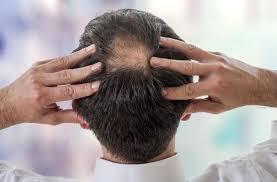 bigen hair dye the side effects you