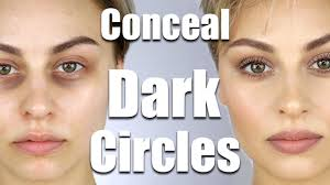 how to conceal dark circles under eyes