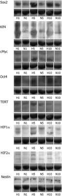 Low-Oxygen Culture Conditions Extend the Multipotent Properties of Human  Retinal Progenitor Cells