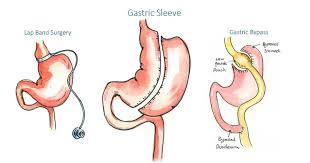 who is a good candidate for gastric