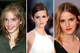 the beauty evolution of emma watson
