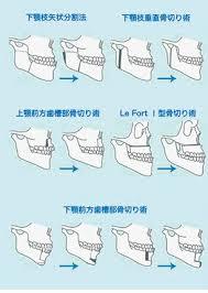 顎変形症 | 医療法人鉄蕉会 医療ポータル(亀田メディカルセンター)