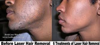 laser hair removal raleigh cary