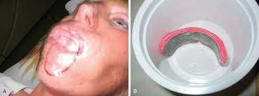 lip cancer an overview