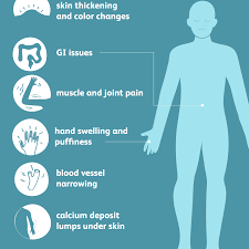 scleroderma signs symptoms and