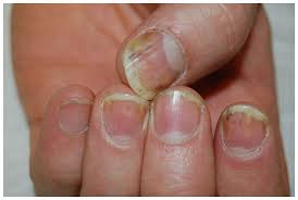 nail disease in patients with psoriasis