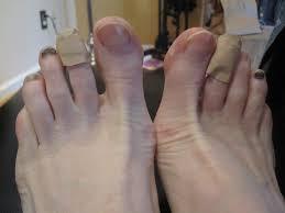 black toenails and runner s feet