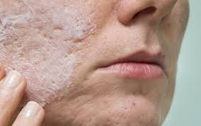 acne scar camouflage 101 acne