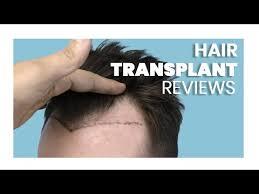 hair transplant in turkey i hair