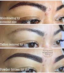 tattoo removal magical microblading