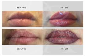 semi permanent lips treatment perfect