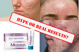mederma for acne scars facts vs fiction