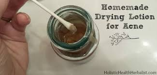 homemade drying lotion for acne