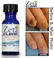 zetaclear toenail fungus
