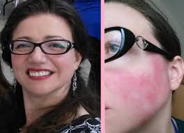 cover a rosacea flare up with makeup