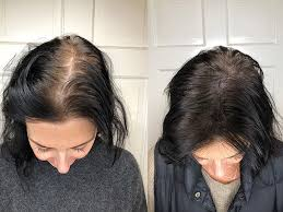 itchy scalp with hair loss are the two