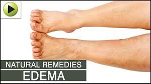 edema natural ayurvedic home remes