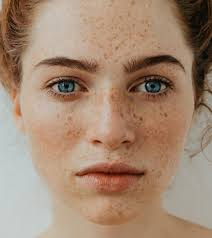 home remes to get rid of freckle on face