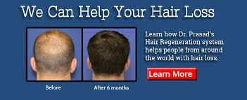 hair restoration hair regrowth new york