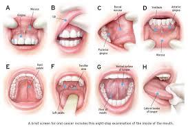 cancer mouth cancer kimaja