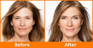 6 homemade skin tightening face packs