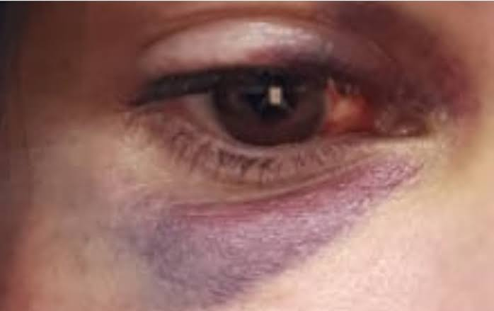 """Resultado de imagem para soco no olho mulher"""""""