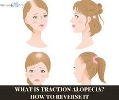 what is traction alopecia how to