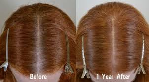 treatment hair restoration of the south