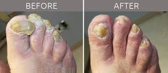 toenail care podiatry 1st