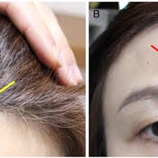 clinical photographs showing alopecia