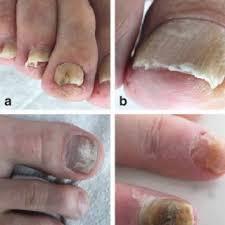 diagnosis and treatment of nail disorders