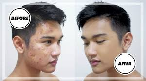 acne scars men s makeup tutorial