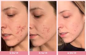 acne before and after makeup
