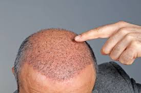 hair transplants all your questions