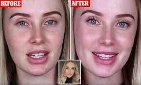 perfect skin without foundation