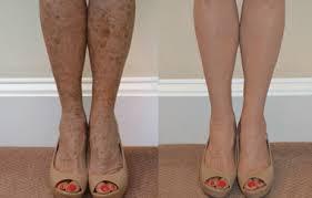 leg makeup before and after saubhaya