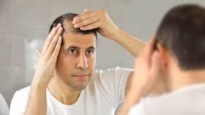 alopecia causes symptoms treatments