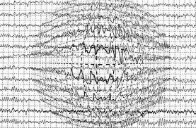 Los tratamientos modernos para la epilepsia no incluyen más ...