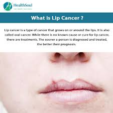 lip cancer causes symptoms and